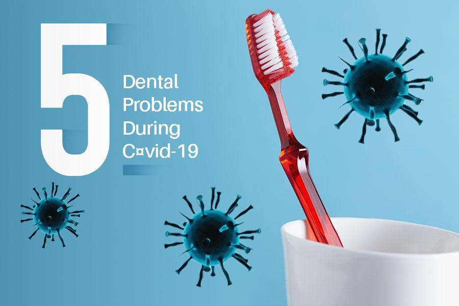 5 Rising Dental Problems During COVID-19